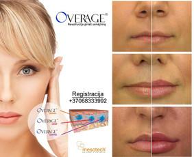 Lūpų putlinimas, hialurono užpildai veidui