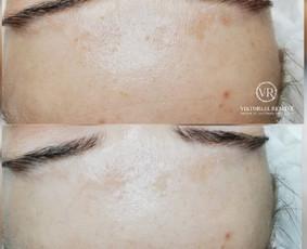 Kosmetologės paslaugos Palangoje / Viktorija Reminė / Darbų pavyzdys ID 663169