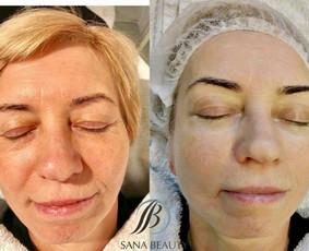 Profesionali kosmetologija Kaune / Egle Bliumkiene / Darbų pavyzdys ID 685153