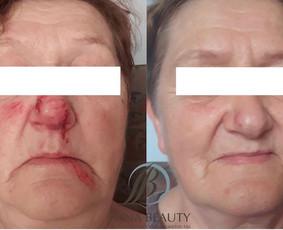 Profesionali kosmetologija Kaune / Egle Bliumkiene / Darbų pavyzdys ID 685237
