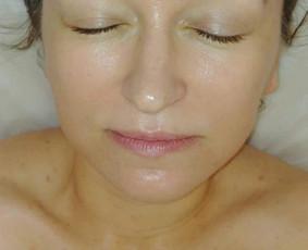 Nusluoksniojamas negyvų ląstelių sluoksnis, vakuumo pagalba įšvalomi inkštyrai. Įtrinama ampulė su biologiškai aktyviomis medžiagomis pagal odos problemą. Procedūra užbaigama kauke.