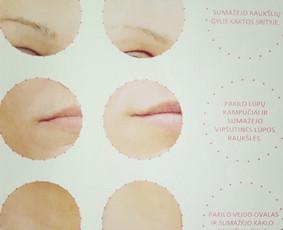 Kosmetikė