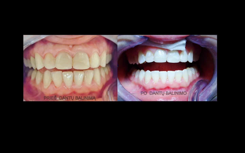 Prieš ir po kabinetinį dantų balinimą