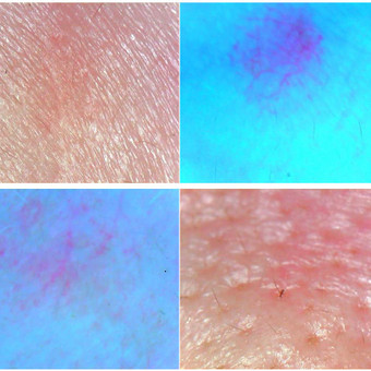 Kosmetologė| masažistė Kretingos mieste. / Kosmetologė|masažistė Laima Saarinen / Darbų pavyzdys ID 545737