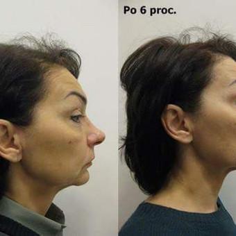 Veido ovalo atstatymas, odos patempimas - rezultatas po 6 procedūrų kurso (iš šono)