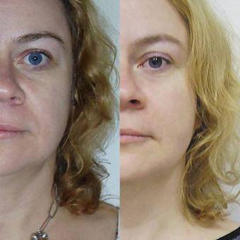 Aktyvi priešraukšlinė programa/veido patempimas - rezultatas po 10 procedūrų kurso