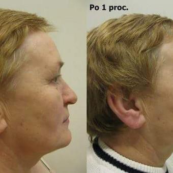Sveikos ir švytinčios odos programa - rezultatas po 1 procedūros