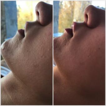 Lūpų srities beadatinė mezoterapija su F-Perfect lips kokteiliu - 50 Eur, Lūpų srities mikroadatinė mezoterapija su F-Perfect lips kokteiliu - 58 Eur.