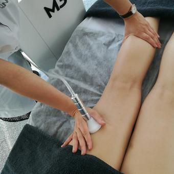 Visiškai neinvazinis ir saugus metodas celiulito mažinimui, liekninimui bei jungiamojo audinio atkūrimui.