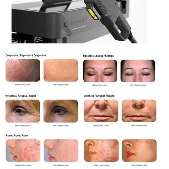Fotoatjauninimas, raudonio ir kapiliarų šalinimas, pigmentinių dėmių šalinimas, aknės gydymas, fotoepiliacija (plaukų šalinimas).