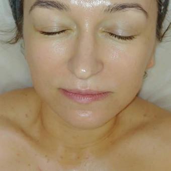Beadatinė mezoterapija (elektroporacija) yra efektyviausias neinvazivus biologiškai aktyvių medžiagų įvedimo būdas į gilesnius odos sluoksnius. Nėra skausmo, mėlynių, poprocedūrinio laiko ...