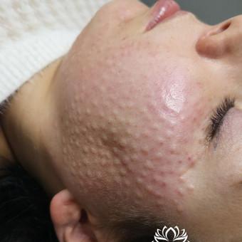 Med.Kosmetologė / Eglė Tregubova / Darbų pavyzdys ID 905125