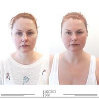Veido ir kūno procedūros / Lina / Darbų pavyzdys ID 990715
