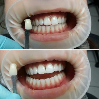 Dantų balinimas naudojant Opalescence balinimo sistemą. Pacientės pageidavimu dantys išbalinti 2 tonais šviesesni.