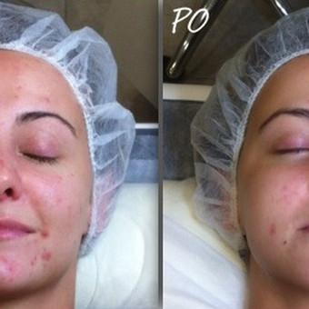 Ultragarsinis - giluminis veido valymas. Rezultatas po 1 procedūros.