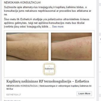 Esthetica grožio terapijos studija  Prieš ir po |  Kapiliarų naikinimas vizualizacija iš nuotraukų telefonu | Aktyvus linkas į puslapį, bei į atskiras paslaugas