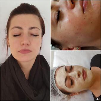 Klientei atliktas cheminis pieno rūgšties odos šveitimas su ODA kosmetika. Ši rūgštis sprendžia tokias problemas kaip dehidratacija, hiperpigmentacija, paviršiniai spuogai, bėrimai, fotosen ...