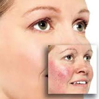 OneSelf Grožio Studija- veido procedūros / Ivona Kosmetologė / Darbų pavyzdys ID 337849