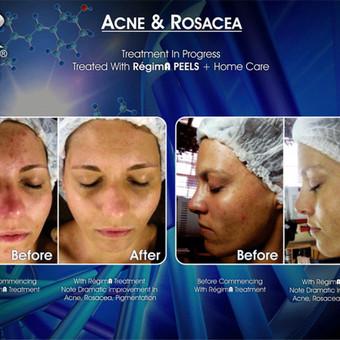 Rūgštinis odos šveitimas – tai giluminis odos valymas, kurio metu pašalinamos negyvos ir suragėjusios paviršinio odos sluoksnio ląstelės. Taip oda natūraliai atsinaujina, tampa skaisti ir  ...