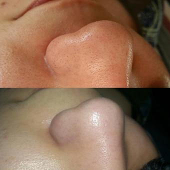 Kosmetologė Eglė / Beauty Room / Eglė Juščienė / Darbų pavyzdys ID 344357