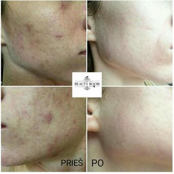 Kosmetologė Eglė / Beauty Room / Eglė Juščienė / Darbų pavyzdys ID 344359