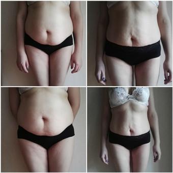 Liekninamojo viso kūno masažo rezultatai: Nuotraukos darytos 4 savaičių skirtumu, prieš ir po 10 procedūrų masažo kursą. Moteris po gimdymo, maitina tik savo pienu, mityba koreguota nebuvo.