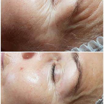 Nuotraukose matote procedūros rezultatą: veido odai atliktos  jauninimo ir drėgmės atstatymo programos, Galvanic SPA aparatu. Procedūrai naudojama profesionali kosmetika Germaine de Capuccini.