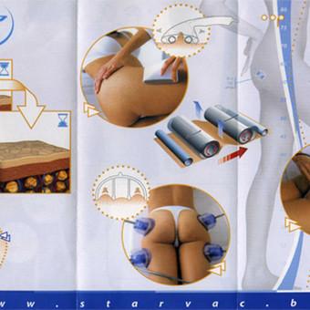 """Vakuuminis-anticeliulitinis masažas Starvac Sp2 aparatu / Gydomasis masažas """"Sana"""" / Darbų pavyzdys ID 380279"""